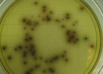 Listeria monocytogenes grown on Listeria Selective Agar